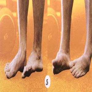 Exercise renforcement des pieds. Eversion/Inversion